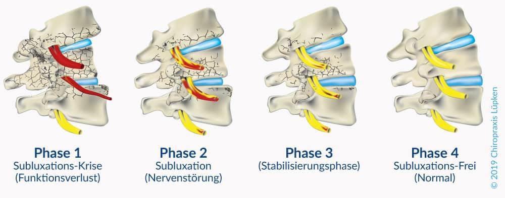 Die Phasen-Heilung der Chiropraktik